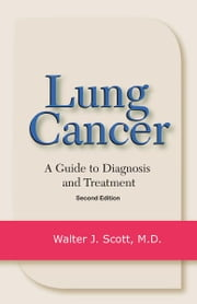 Lung Cancer - A Guide to Diagnosis and Treatment ebook by Walter J. Scott, MD