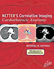 Netter's Correlative Imaging: Cardiothoracic Anatomy ebook by Michael Gotway,Nancy M. Major