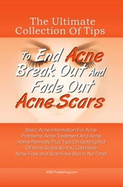The Ultimate Collection Of Tips To End Acne Break Out And Fade Out Acne Scars - Basic Acne Information For Acne Problems, Acne Treatment And Acne Home Remedy Plus Tips On Getting Rid Of Acne Scars So You Can Have Acne-Free and Scar-Free Skin In No Time! ebook by KMS Publishing