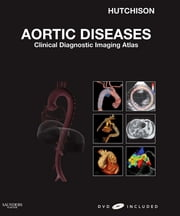 Aortic Diseases - Clinical Diagnostic Imaging Atlas ebook by Stuart J. Hutchison,Ceil Nuyianes