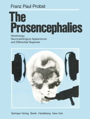 The Prosencephalies - Morphology, Neuroradiological Appearances and Differential Diagnosis ebook by A. Brun,F.P. Probst,I. Pascual-Castroviejo