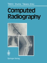 Computed Radiography ebook by