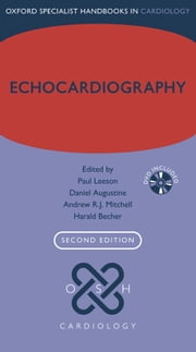 Echocardiography ebook by Paul Leeson,Daniel Augustine,Andrew R.J. Mitchell,Harald Becher