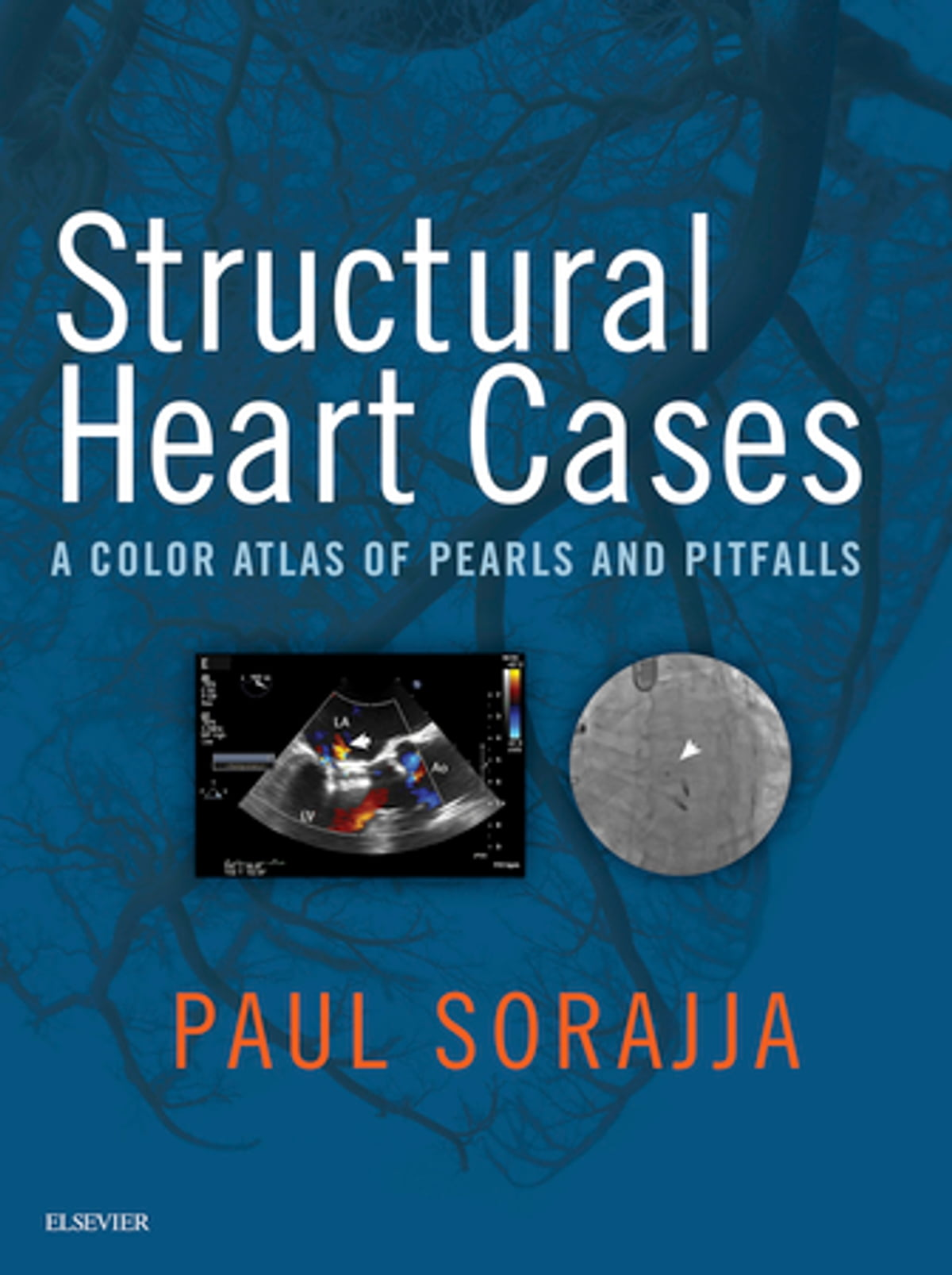 ... Array - structural heart cases ebook by paul sorajja md 9780323550918  rh ...
