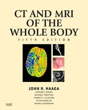 Computed Tomography & Magnetic Resonance Imaging Of The Whole Body ebook by John R. Haaga,Daniel Boll,Vikram S. Dogra,Michael Forsting,Robert C. Gilkeson,Kwon Hyun Ha,Murali Sundaram