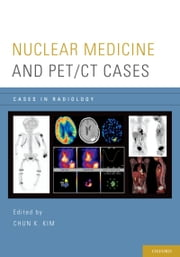 Nuclear Medicine and PET/CT Cases ebook by Chun K. Kim