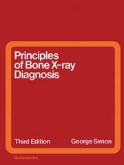 Principles of Bone X-Ray Diagnosis ebook by Simon, George