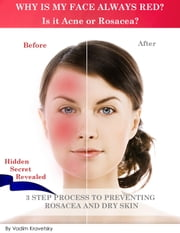 Why is my face always red? Is it Acne or Rosacea?: 3 step process to preventing Rosacea and Dry Skin ebook by Vadim Kravetsky