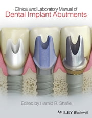 Clinical and Laboratory Manual of Dental Implant Abutments ebook by Hamid R. Shafie