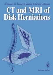 CT and MRI of Disk Herniations ebook by Denis Krause,Luc Picard,Jean L. Drape,Daniel Maitrot,Bernard Woerly,Jean Tongio