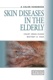 Skin Diseases in the Elderly - A Color Handbook ebook by Colby Craig Evans,Whitney A High