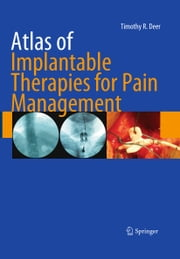 Atlas of Implantable Therapies for Pain Management ebook by Timothy R. Deer