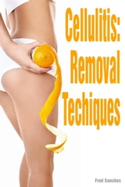 Cellulite Removal Techniques ebook by Fred Sanches