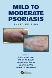 Mild to Moderate Psoriasis, Third Edition ebook by Koo, John Y. M.
