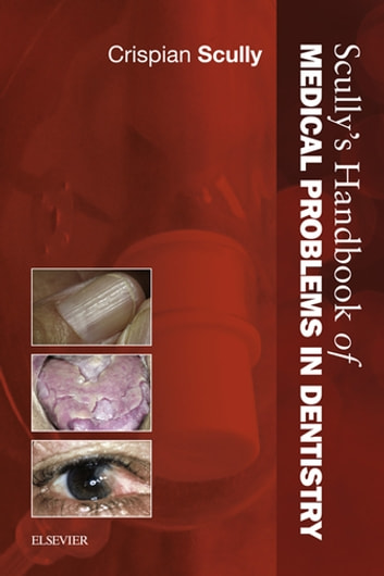 Scully's Handbook of Medical Problems in Dentistry E-Book ebook by Crispian Scully, MD, PhD