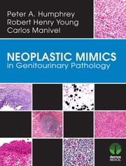 Neoplastic Mimics in Genitourinary Pathology ebook by Peter Humphrey, MD,J. Carlos Manivel, MD,Robert Young, MD