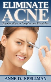 Eliminate Acne ebook by Anne D. Spellman