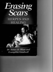 Erasing Scars - Herpes and healing ebook by James D. Okun, MD,evangelita Goodwell