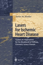 Lasers for Ischemic Heart Disease - Update on Alternatives for the Treatment of Diffuse Coronary Artery Disease ebook by Xavier M. Mueller