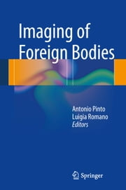 Imaging of Foreign Bodies ebook by Antonio Pinto,Luigia Romano