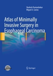 Atlas of Minimally Invasive Surgery in Esophageal Carcinoma ebook by Shailesh Puntambekar,Miguel Cuesta