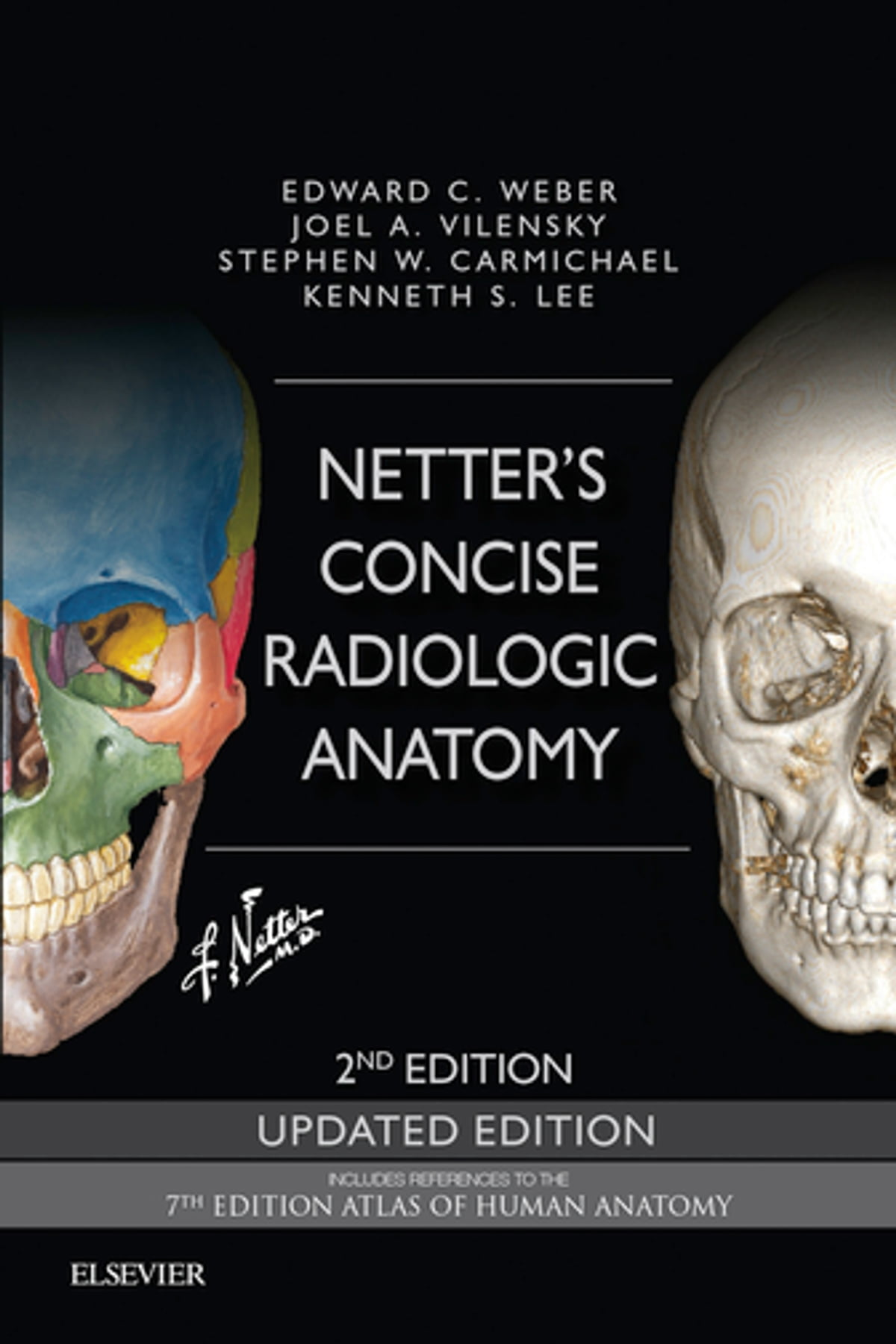 Netters Concise Radiologic Anatomy Updated Edition Ebook By Edward