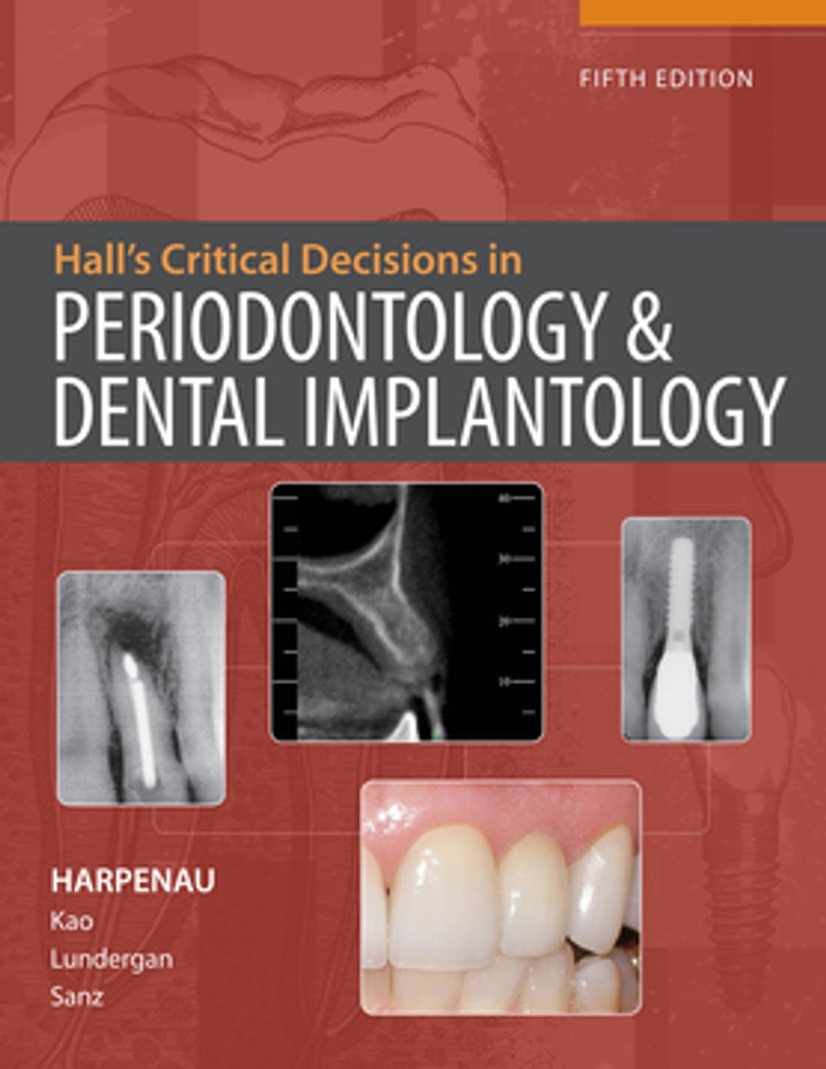 Hall's Critical Decisions in Periodontology & Dental Implantology, 5e ebook  by Lisa Harpenau - Rakuten Kobo