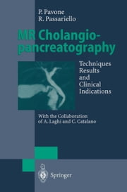 MR Cholangiopancreatography - Techniques, Results and Clinical Indications ebook by Paolo Pavone,A. Laghi,C. Catalano,Roberto Passariello