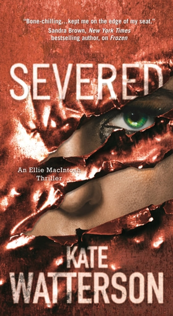 Severed eBook by Kate Watterson