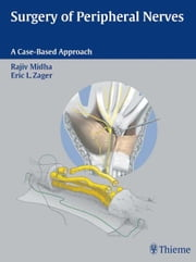 Surgery of Peripheral Nerves - A Case-Based Approach ebook by Rajiv Midha,Eric L. Zager