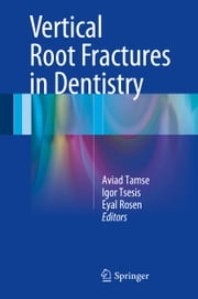 Vertical Root Fractures in Dentistry ebook by Aviad Tamse,Igor Tsesis,Eyal Rosen