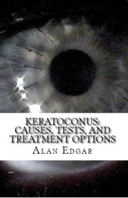 Keratoconus: Causes, Tests, and Treatment Options ebook by Alan Edgar