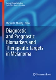 Diagnostic and Prognostic Biomarkers and Therapeutic Targets in Melanoma ebook by Michael J. Murphy