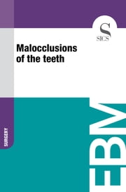 Malocclusions of the Teeth ebook by Sics Editore