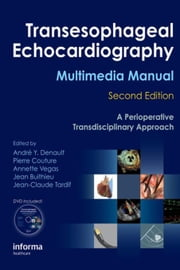 Transesophageal Echocardiography Multimedia Manual: A Perioperative Transdisciplinary Approach ebook by Denault, André Y.