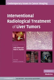 Interventional Radiological Treatment of Liver Tumors ebook by Andy  Adam,Peter R.  Mueller