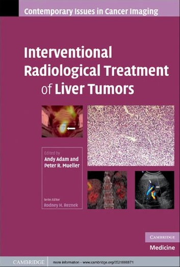 Interventional Radiological Treatment of Liver Tumors ebook by