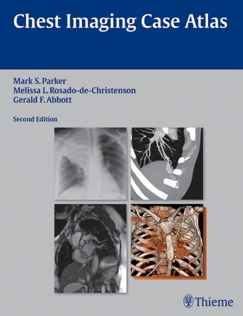 Chest Imaging Case Atlas ebook by Mark S. Parker,Melissa L. Rosado-de-Christenson,Gerald F. Abbott