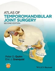 Atlas of Temporomandibular Joint Surgery ebook by Peter D. Quinn,Eric J. Granquist