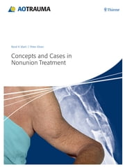 Concepts and Cases in Nonunion Treatment ebook by Peter Kloen,Ren K. Marti