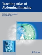 Teaching Atlas of Abdominal Imaging ebook by Mukesh G. Harisinghani,Peter R. Mueller
