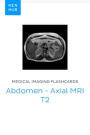 Medical Imaging flashcards: Abdomen - Axial MRI T2 - Learn all muscles, bones, arteries, veins, organs and mri on the go ebook by Kenhub, Kenhub