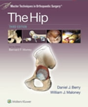 Master Techniques in Orthopaedic Surgery: The Hip ebook by Daniel J. Berry,William Maloney