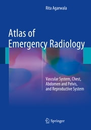 Atlas of Emergency Radiology - Vascular System, Chest, Abdomen and Pelvis, and Reproductive System ebook by Rita Agarwala