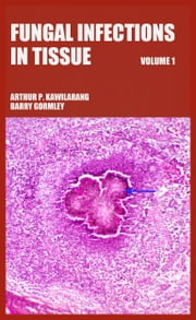 Fungal Infections in Tissue Volume 1 ebook by Arthur Pohan Kawilarang,Barry Gormley