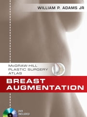 Breast Augmentation - An Operative Atlas EBOOK ebook by William Adams