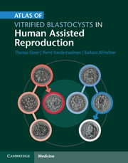Atlas of Vitrified Blastocysts in Human Assisted Reproduction ebook by Thomas Ebner,Pierre Vanderzwalmen,Barbara Wirleitner