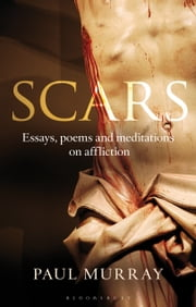 Scars - Essays, Poems and Meditations on Affliction ebook by Dr Paul Murray OP