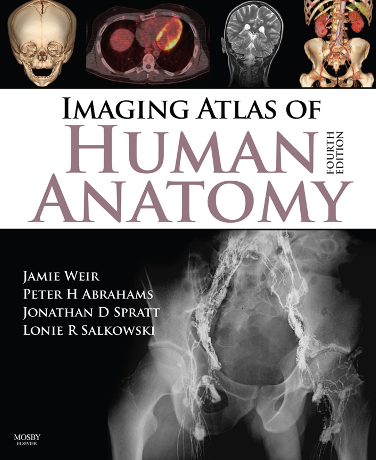 Imaging Atlas Of Human Anatomy E Book Ebook By Jonathan D Spratt