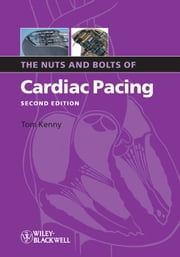 The Nuts and Bolts of Cardiac Pacing ebook by Tom Kenny